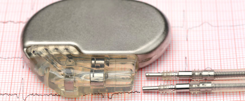 Cardioverso Desfibrilador Implantável (CDI)
