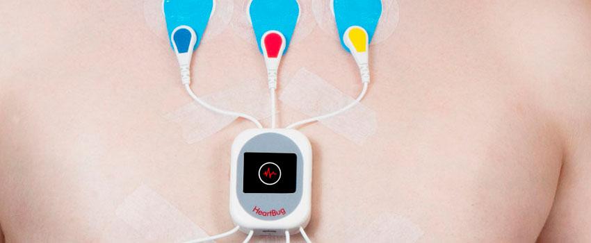 Holter: o que é e para que serve