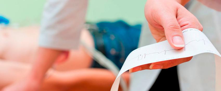 Eletrocardiograma: Entenda o que é e para que serve
